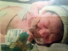 【人体の不思議】血液を持たない赤ん坊 ― 極めて珍しい先天性疾患の謎