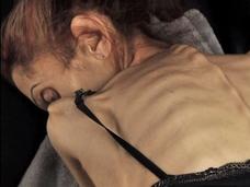 【拒食症】身長170cm体重18キロ ― 米国人女優を「死のダイエット」に駆り立てたものとは?