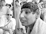 パキスタンの「ラットピープル」 ― 近親相姦か虐待か、全員ネズミ顔の謎