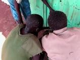 ミサイルの破片が直撃した7歳男児の姿が凄惨すぎる!! スーダン南部で今起きていること