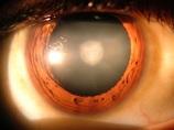 """白内障が""""手術なし""""で治る時代へ!! 「ラノステロール」点眼薬がカギだった!(最新研究)"""