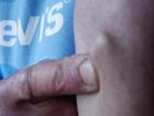 【衝撃告白】「宇宙人にインプラントを埋め込まれた」英国人男性の腕に謎の突起!!