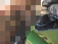 【閲覧注意】最凶の殺人ダニ「スナノミ」に寄生された足が、目も当てられないほどのグロさ!!