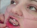 エーラス・ダンロス症候群 ― 身体がバラバラになる少女、口も縫い合わせる=イギリス