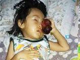 顔面に巨大腫瘍を持つ3歳の少年 手術せずに日本の漢方薬を選んだ後、死亡=インドネシア