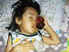 顔面に巨大腫瘍を持つ3歳の少年