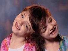 「知覚・感情・脳」を共有、でも人格は別 ― 美少女結合双生児の不思議な関係