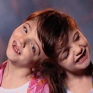 「知覚・感情・脳」を共有、でも人格は別 ― 美少女結合双生児 ...