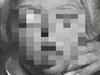 【閲覧注意】クルーゾン症候群 ― 顔面が歪み、眼球が飛び出る奇病