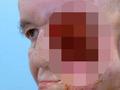 【閲覧注意】横顔を失った男 ― 3Dプリンタによる顔面再生の奇跡