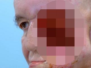 【【閲覧注意】横顔を失った男 ― 3Dプリンタによる顔面再生の奇跡