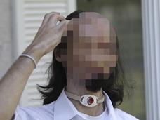 【閲覧注意】事故で「のっぺらぼう」になった男 ― 驚異の全顔面移植手術、全貌とは!?