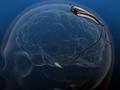【議論】「犯罪者の脳を手術すべき」vs「犯罪者と我々の脳は同じ」