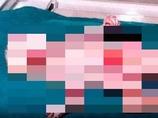 【超・閲覧注意】奇病「ハーレクイン型魚鱗癬」 ― 赤い目をしたトラ柄の肌