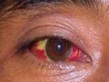 """【警告】洪水後に流行する危険な感染症!? 目が""""ゾンビ化""""する「レプトスピラ症」の恐ろしさとは?"""