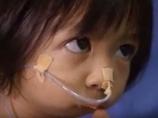 口が閉じたまま生まれた女の子 ― 食べることも話すこともできず