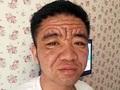 """30歳なのに80歳の容姿! 男が突然""""超老け顔""""になった謎の症状が怖すぎる!!=中国"""