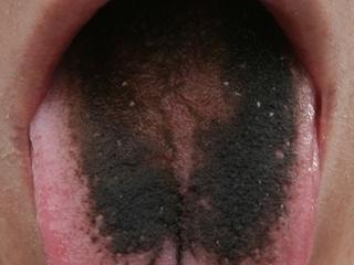 【【閲覧注意】奇妙でグロい「舌の病気」4選! 放置したら重病に…?