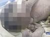 【閲覧注意】「単眼症」の赤ん坊誕生!! 原因は薬か、放射線か!?=エジプト