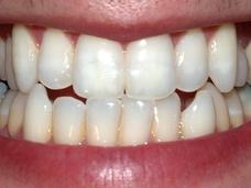 歯の再生が可能になる? 抜けた歯が再び生える最新研究とシクリッドの謎!