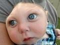 無脳症の赤ちゃん、奇跡的に1歳を迎える!! 「パパ、ママ」と呼ぶことも!