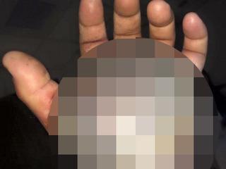 【【閲覧注意】ガラガラヘビに噛まれた手が、ハンパないグロさで人間の手とは思えないレベル!!