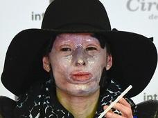 33歳美人女性の顔に硫酸「すべてが灰色になった」 ―  アシッドアタックの惨劇=コロンビア