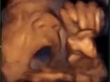 【胎内教育】胎児はお腹の中で、音楽を聴くだけでなく歌っている!? 超衝撃画像で明らかに!