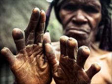 【閲覧注意】死者のために指を切断する「ダニ族」の奇習 ― 激痛とミイラと死生観=ニューギニア