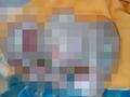 【超・閲覧注意】生まれた我が子の姿を見て絶望 ― 奇病「ハーレクイン型魚鱗癬」の赤ん坊映像に衝撃