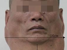 """【閲覧注意】1日2リットルの飲酒で""""馬の首""""になった男 ― 恐怖のマーデルング病"""