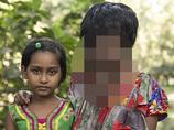 """【閲覧注意】""""顔面ドロドロ""""の21歳女性 ― 医者から見放されても「これが私の生きる道」"""