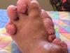 【閲覧注意】「足を切ってくれ!」組織の異常増殖で膨れゆく足