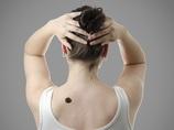 右腕に●個以上ホクロがあると、皮膚ガンになる可能性が高い(最新研究)