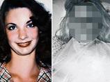 【閲覧注意】DVによる顔面崩壊→100回以上の整形で美を取り戻した女