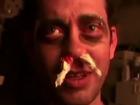 【閲覧注意?】時速160キロのリンゴを顔面に食らうとこうなる