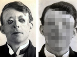 【閲覧注意】世界で最初の整形手術を受けた7人 ― 顔面移植、性転換、豊胸手術…!