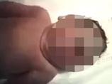 """【閲覧注意】巨大な単眼症「サイクロプス」 ― 振り向いた赤ん坊は""""1つ眼""""だった!"""