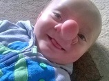"""""""本物のピノキオ""""と呼ばれた赤ん坊 ― 脳が鼻から飛び出る「脳ヘルニア」とは?"""