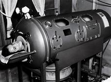 恐怖の「鉄の肺」 ― 20世紀半ば、多くの子どもを救った人工呼吸器が拷問レベル