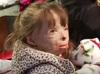放火で家族を失い、重度の火傷を負った少女が「世界中からのクリスマスカード」を希望