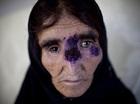 「イスラム国」の蛮行がもとでシリアに「人喰い菌」が大発生中!
