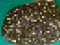 【トライポ閲覧注意】インド人女性の体内から11,950個の胆石出現! 医者も驚愕、異次元レベルのグロ画像…!