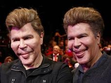 森進一は大丈夫? 急激劣化→美容整形→顔面崩壊した世界の男性4例!