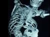 【閲覧注意】ねじれすぎた娘 ― 先天性脊柱側弯症の困難=インド
