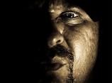 【閲覧注意】性格が奇形を凌駕する ― 鼻がなく、皮膚もただれた人気者=ブラジル