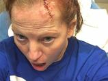 【超・閲覧注意】ホバーボードで転倒して頭がぱっくり割れた女! むき出しになった頭蓋骨に戦慄