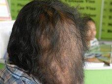 【閲覧注意】頭から巨大スライムが垂れる男 ― 次世代エレファントマンの苦しい人生に一筋の光が差した!=カンボジア