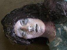 【閲覧注意】凍死後50日で蘇生した女、凍傷でミイラ化する体…! 寒さによる究極の人体被害