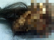"""【閲覧注意】男の腹の中から""""毛むくじゃらの人間""""が出現=インド"""